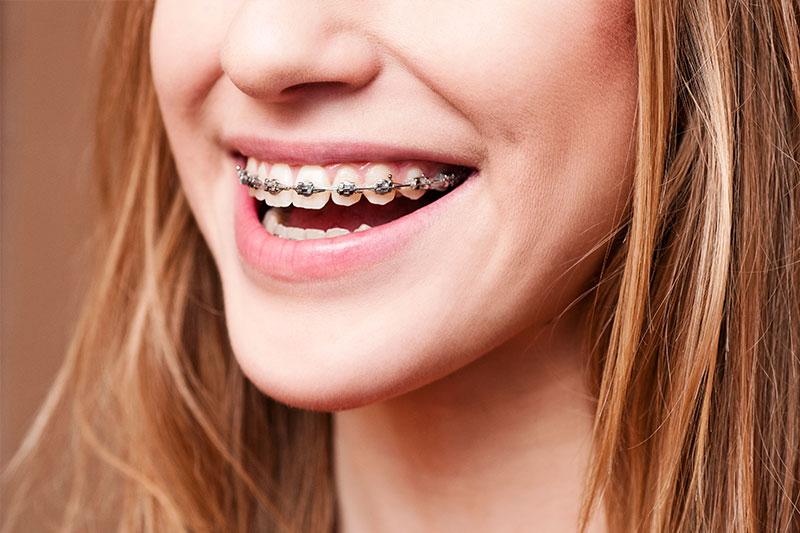 Orthodontics - Richard W. Pacelli DDS, La Grange Dentist