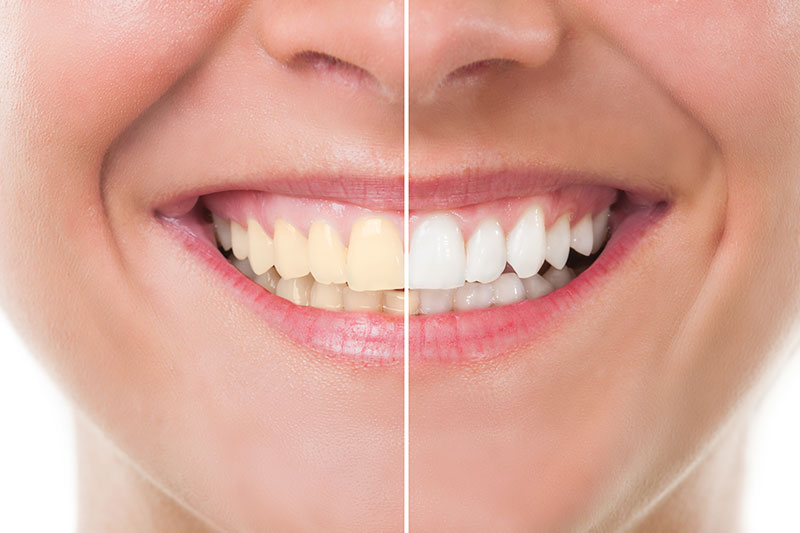 Teeth Whitening - Richard W. Pacelli DDS, La Grange Dentist